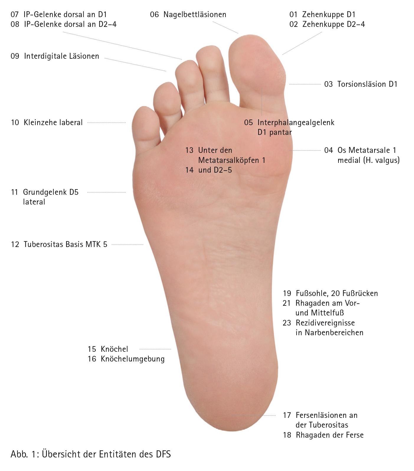 Das Entitätenkonzept in der Behandlung des diabetischen Fußsyndroms ...