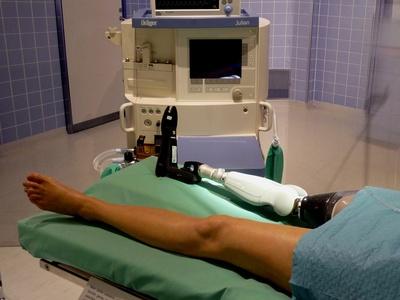 Medizinmärchen 3: infizierter Knochen ist tot und muss entfernt werden